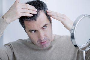 man losing hair